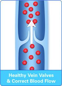 healthy_valves